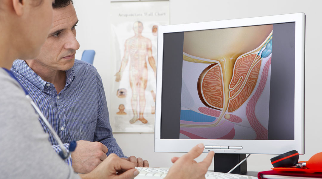 Healing-QA-Treatment-For-An-Enlarged-Prostate_171527033