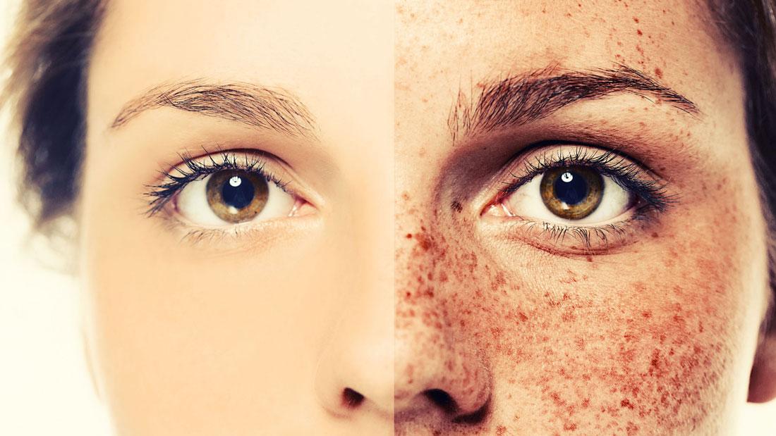diys-to-reduce-freckles