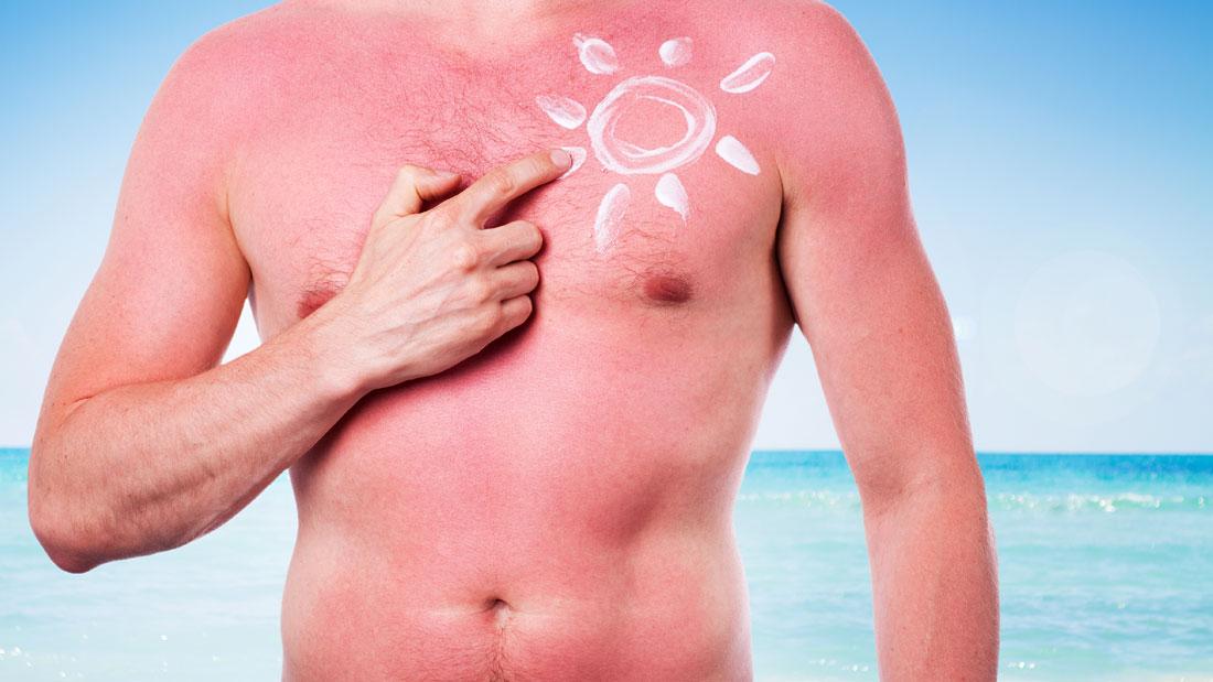 home-remedies-for-sunburn