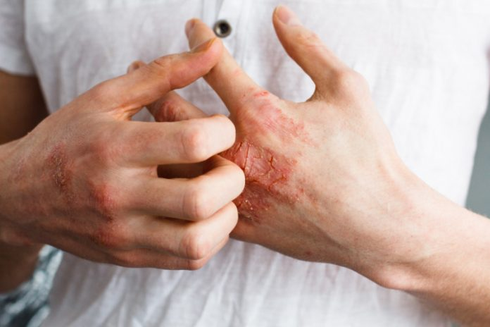 Eczema: Natural Remedies For Eczema