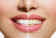 5 Natural Remedies for Whiter Teeth
