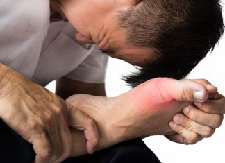 Are Your Inflamed Joints Pointing at Gout?
