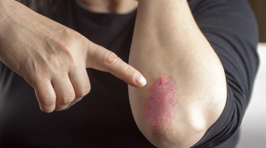 Healing-QA-How-Do-I-Treat-Psoriasis_195503258
