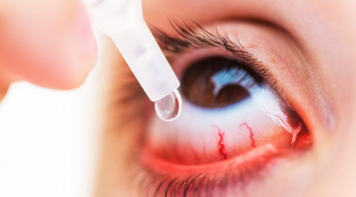 Causes, Symptoms and Treatment of Keratitis