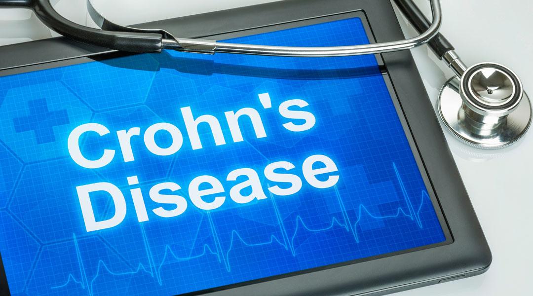 Crohn's-symptoms_188333624
