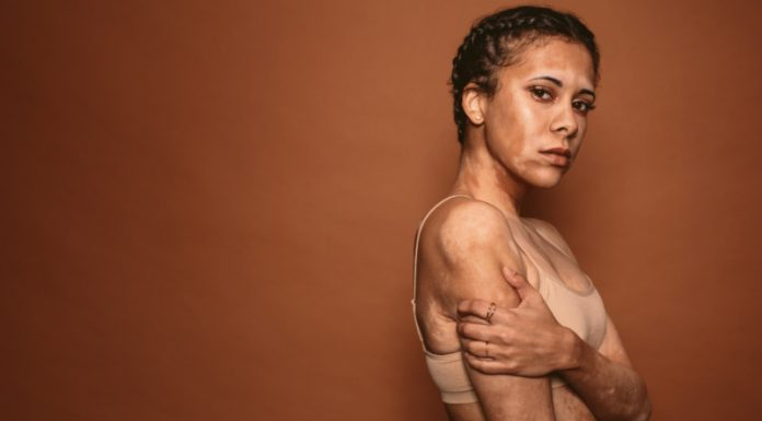 What Does Vitiligo Look Like to You?