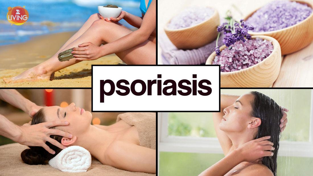 psoriasis-natural-treatment