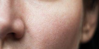 Skincare: Get To The Pore Of The Problem