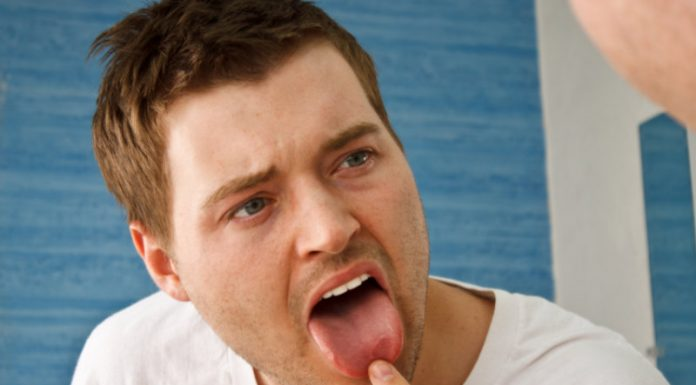 5 Effective Home Remedies to Heal A Sore Tongue