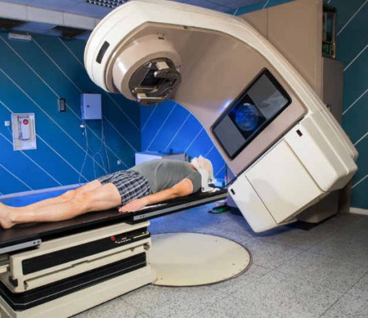Dealing with the Side Effects of Radiotherapy or Radiation Therapy